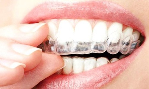 Higiene dental y Periodoncia Sevilla