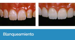 estética dental en Sevilla capital