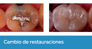 estética dental Sevilla 3
