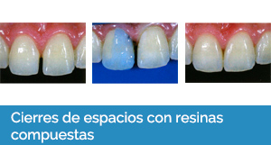 estética dental Sevilla 2