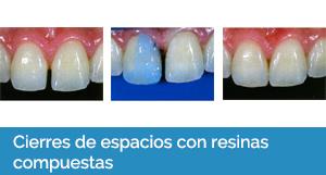 estética dental Sevilla 2