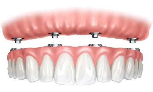 comprar prótesis dentales