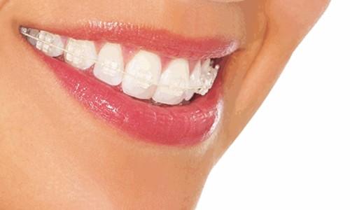 dientes cuidados Sevilla