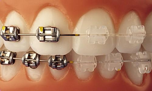 dientes cuidados Sevilla 3
