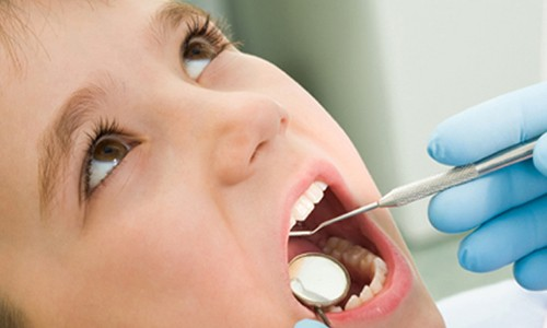 cuidado dientes Sevilla