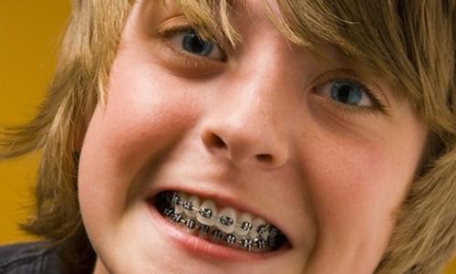 cuidado de dientes para niños Sevilla