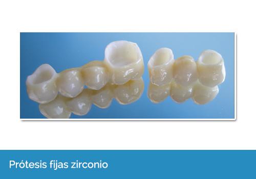 protésis dentales