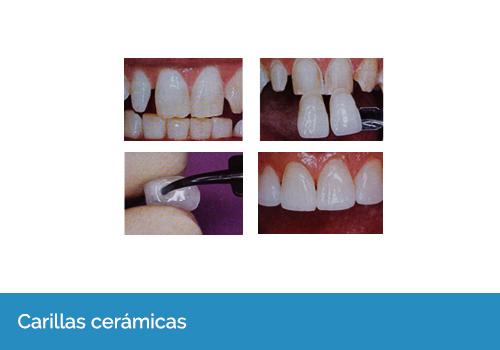 comprar protesis dentales